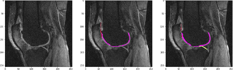 Figure 4 for Knee Cartilage Segmentation Using Diffusion-Weighted MRI