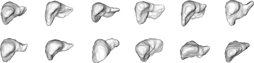 Figure 3 for 3D Organ Shape Reconstruction from Topogram Images