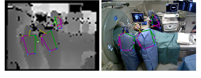 Figure 4 for Human Pose Estimation on Privacy-Preserving Low-Resolution Depth Images