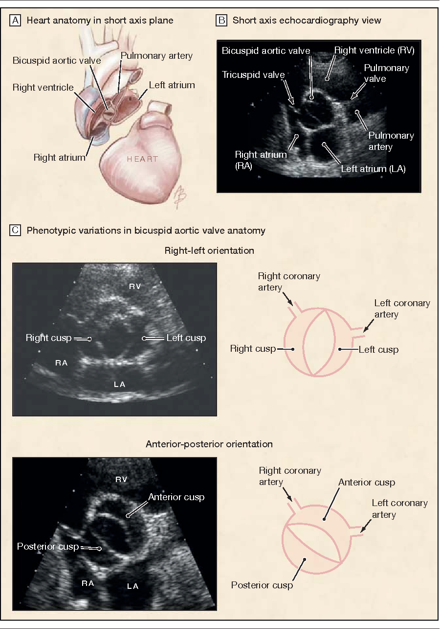 Figure 1 from Outcomes in adults with bicuspid aortic valves ...