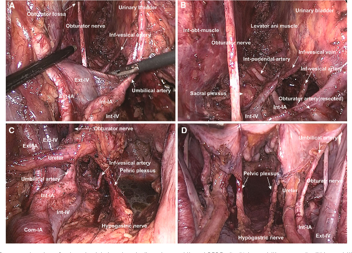 Laparoscopic lateral pelvic lymph node dissection is achievable and ...