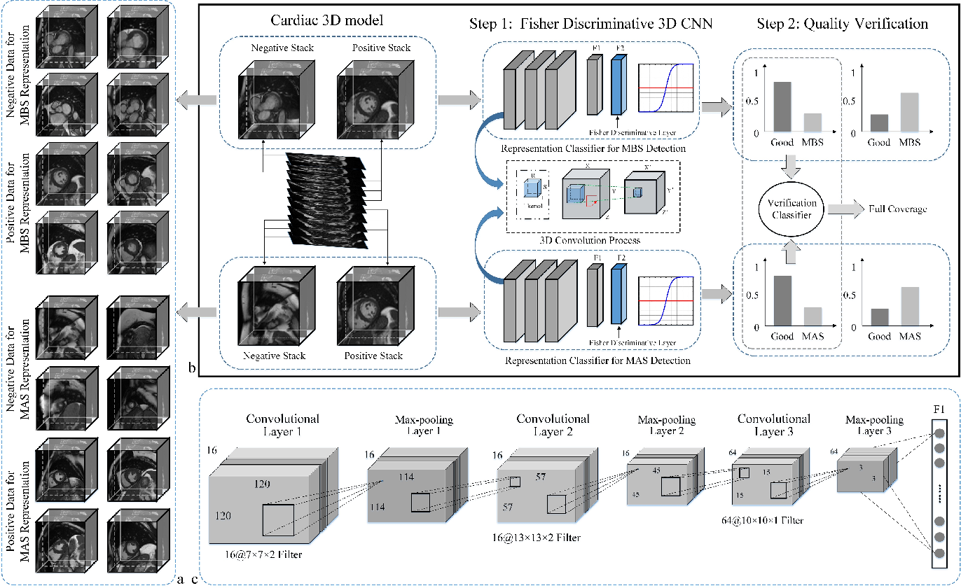 Figure 3 for Automatic Assessment of Full Left Ventricular Coverage in Cardiac Cine Magnetic Resonance Imaging with Fisher-Discriminative 3D CNN
