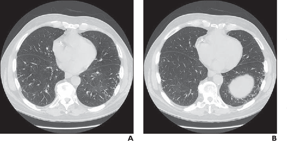 Figure 3—86 from Dendriform Pulmonary Ossification in the Absence of