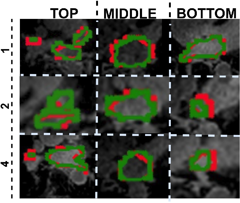 Figure 3 for V-FCNN: Volumetric Fully Convolution Neural Network For Automatic Atrial Segmentation