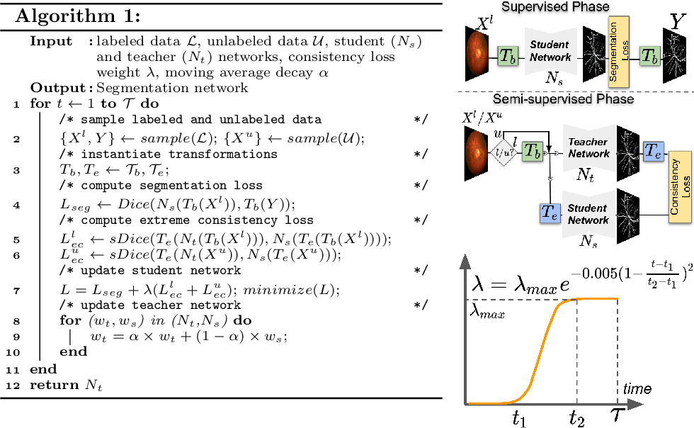 Figure 1 for Extreme Consistency: Overcoming Annotation Scarcity and Domain Shifts