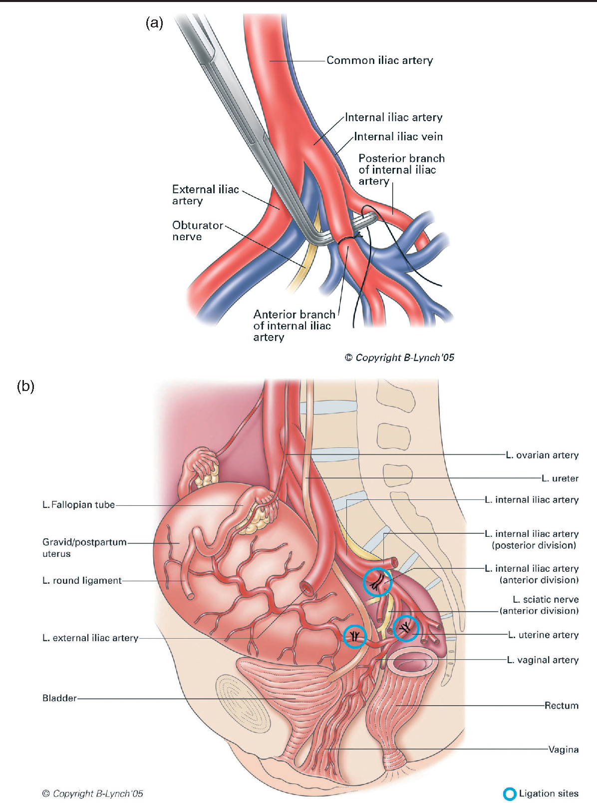 Figure 1 from Internal Iliac ( Hypogastric ) Artery Ligation ...