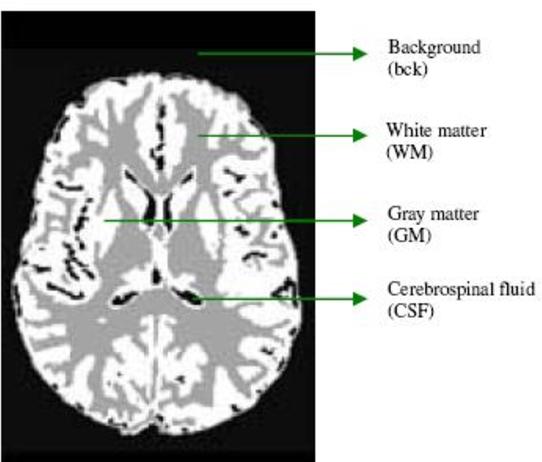 PDF] Image Segmentation using Fuzzy C Means Clustering: A survey