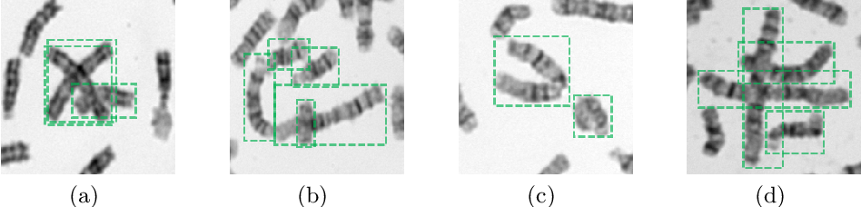 Figure 1 for DeepACE: Automated Chromosome Enumeration in Metaphase Cell Images Using Deep Convolutional Neural Networks