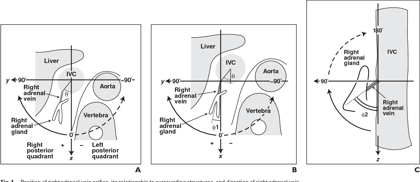 Radiologic anatomy of the right adrenal vein: preliminary experience ...
