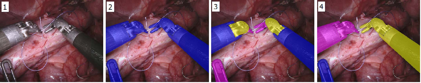Figure 1 for Automatic Instrument Segmentation in Robot-Assisted Surgery Using Deep Learning