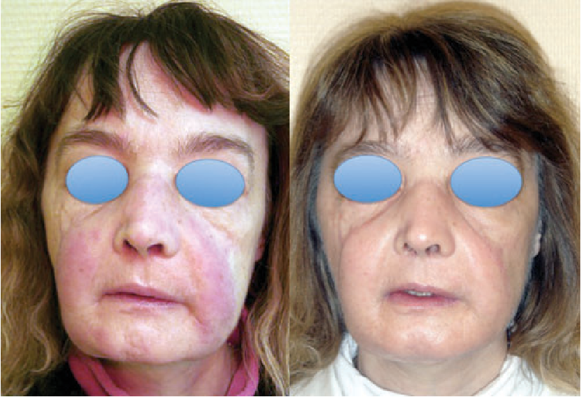 Figure 1: Redness of the facial allograft skin in the first face-allograft recipient 2.5 years postgraft (left-hand side), and regression some weeks after appropriate treatment (right-hand side).