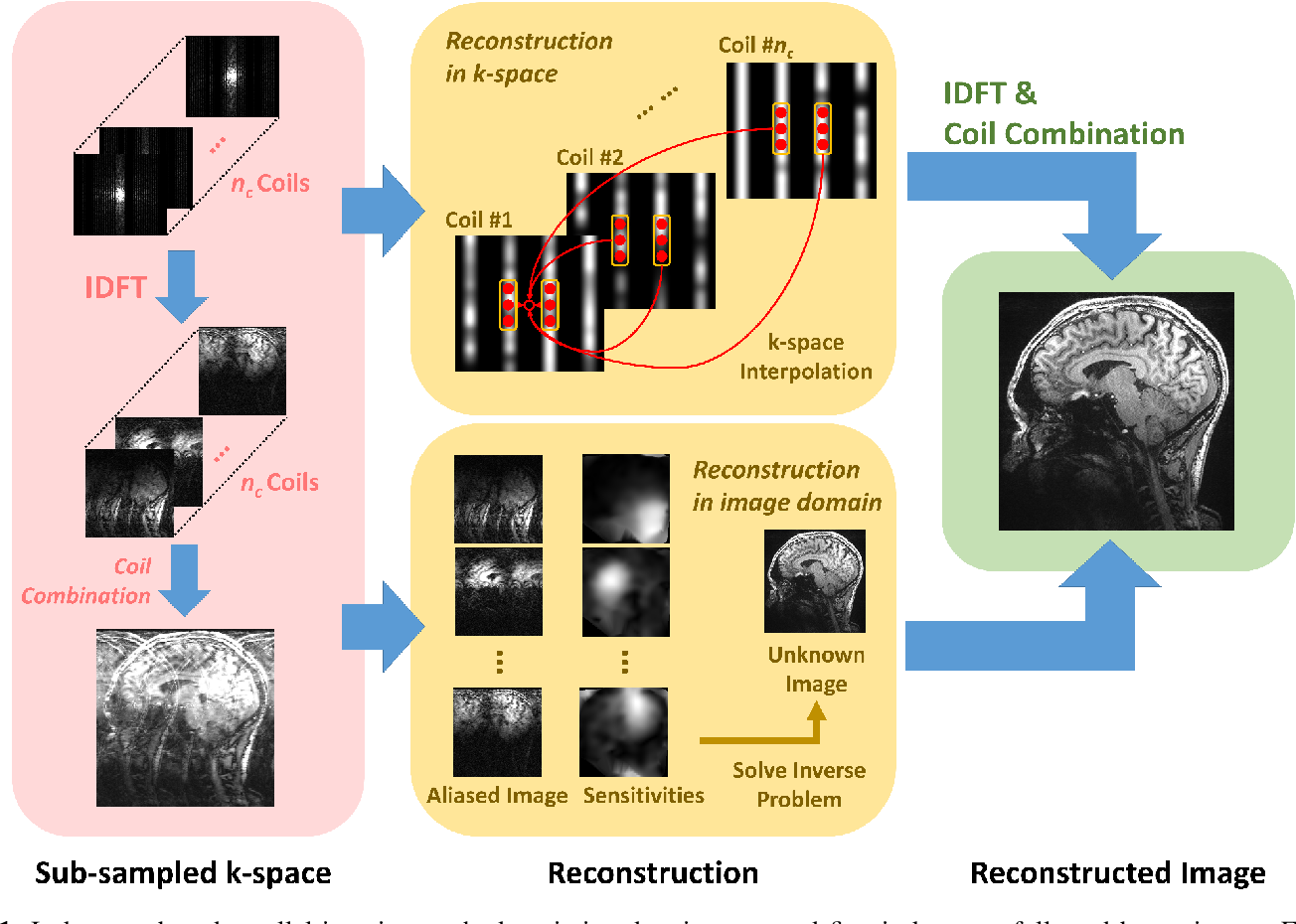 Figure 1 for Deep Learning Methods for Parallel Magnetic Resonance Image Reconstruction