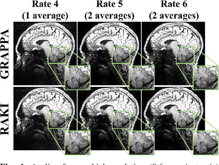 Figure 4 for Deep Learning Methods for Parallel Magnetic Resonance Image Reconstruction