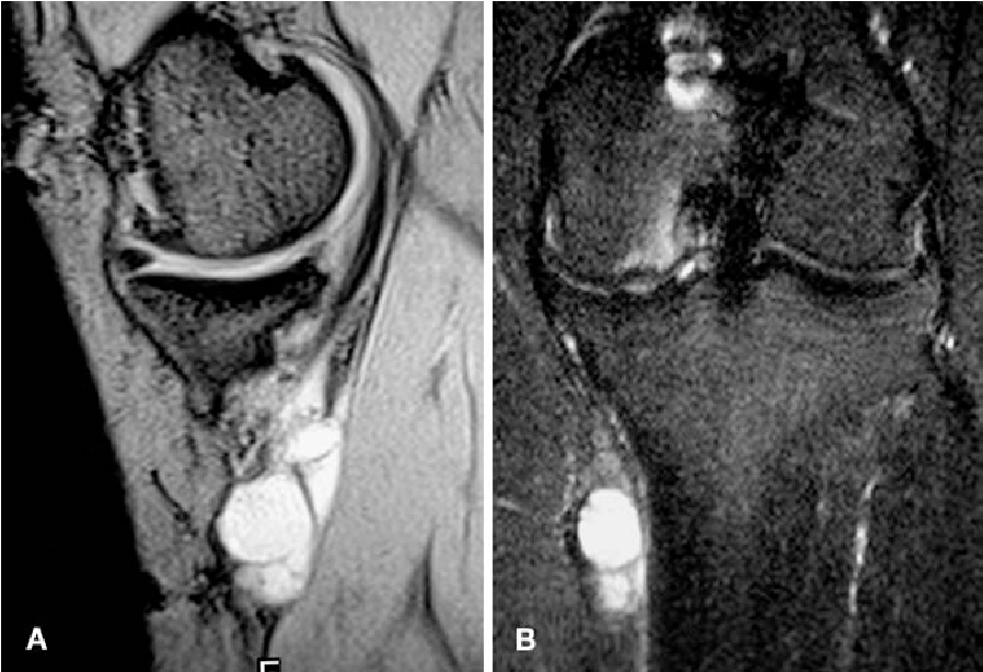 Pes anserine bursitis: incidence in symptomatic knees and clinical ...
