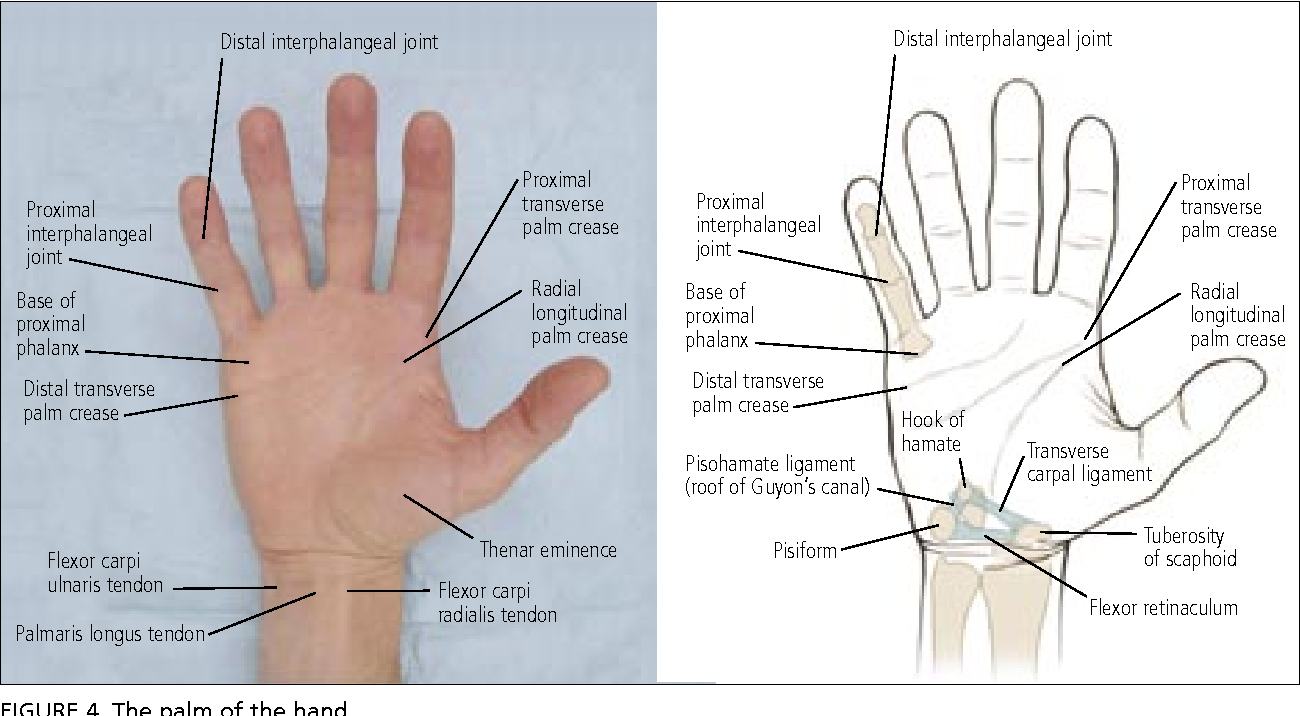 Figure 4 From Hand And Wrist Injuries Part I Nonemergent