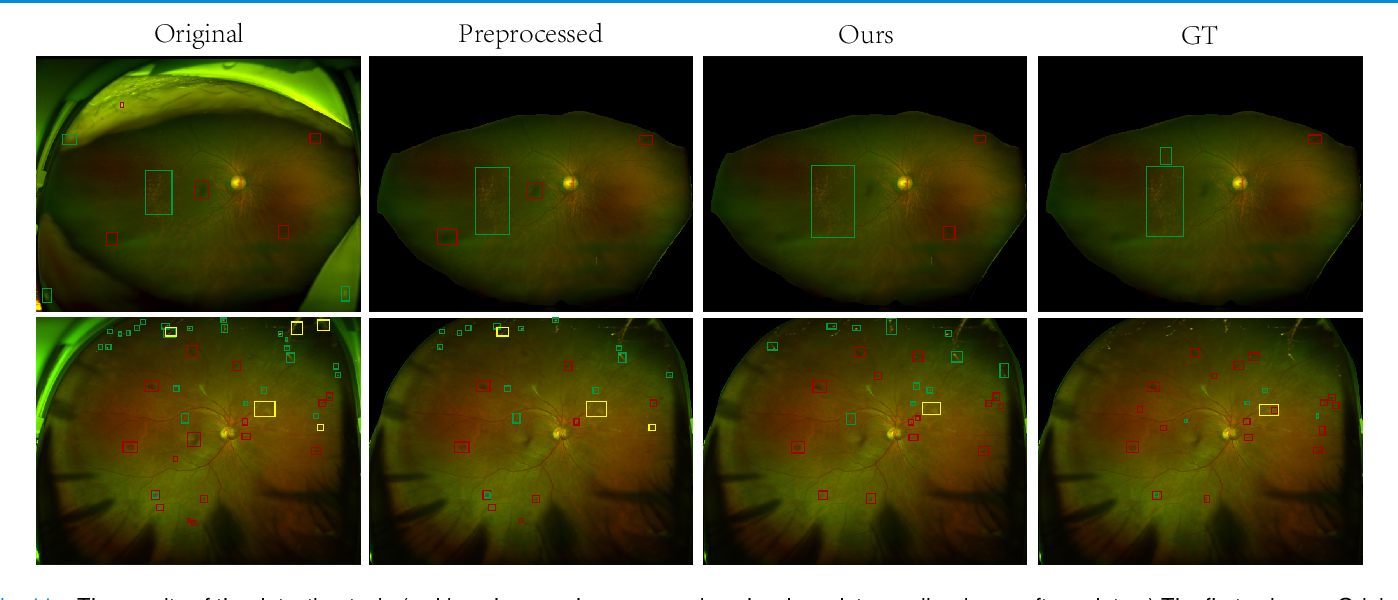 Figure 3 for Leveraging Regular Fundus Images for Training UWF Fundus Diagnosis Models via Adversarial Learning and Pseudo-Labeling