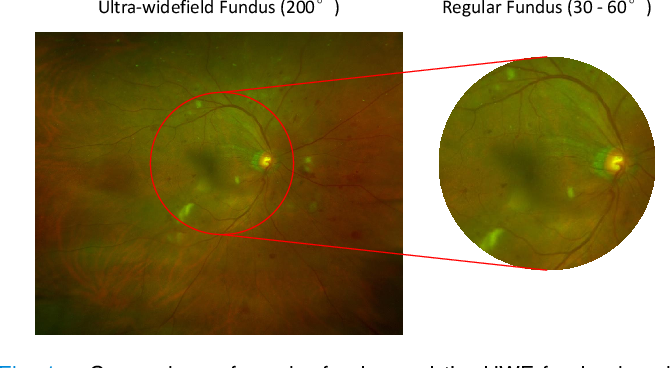 Figure 1 for Leveraging Regular Fundus Images for Training UWF Fundus Diagnosis Models via Adversarial Learning and Pseudo-Labeling