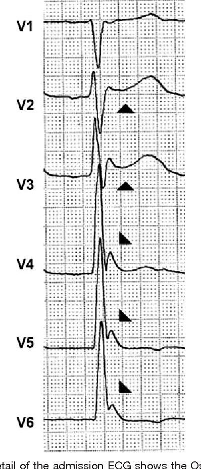 Figure 60 From Images In Cardiovascular Medicine Brugadalike ECG Best Ecg Pattern