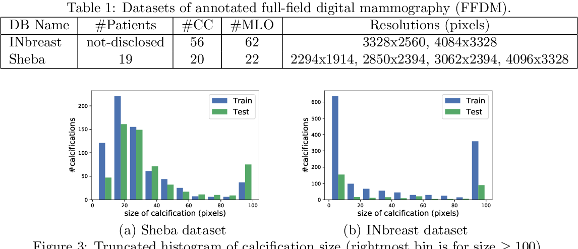 Figure 2 for Segmenting Microcalcifications in Mammograms and its Applications