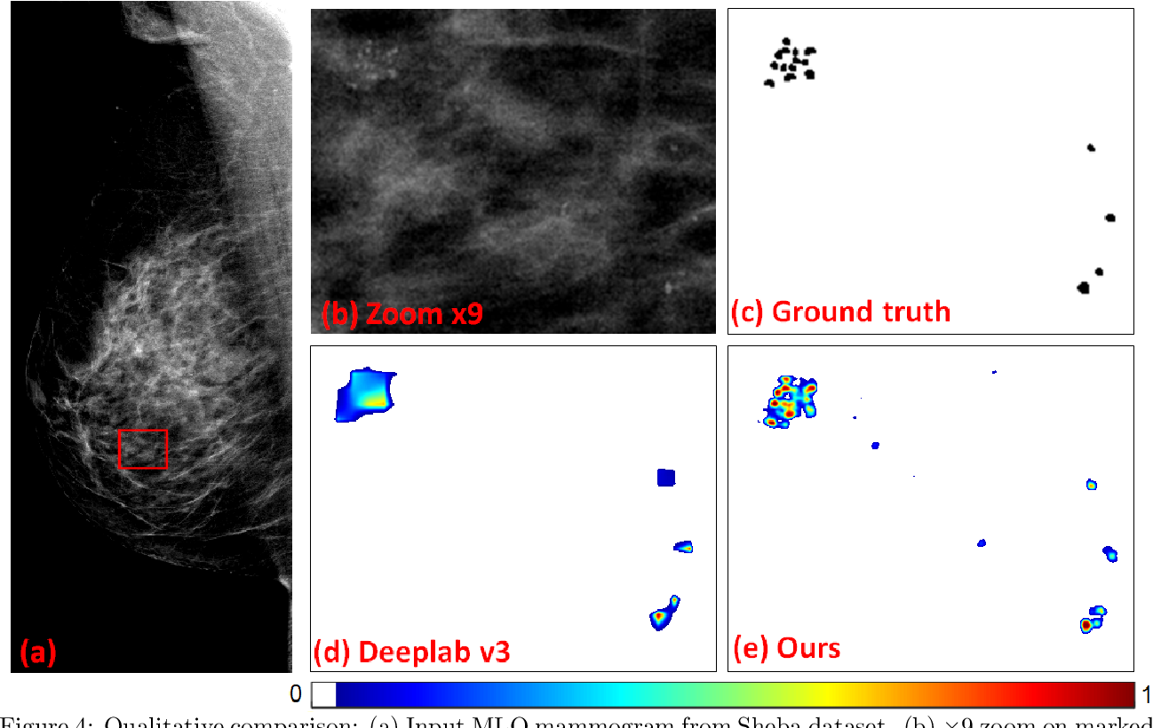 Figure 4 for Segmenting Microcalcifications in Mammograms and its Applications
