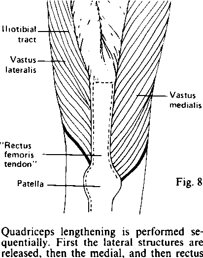 Figure 8 From Habitual Dislocation Of The Patella In Flexion