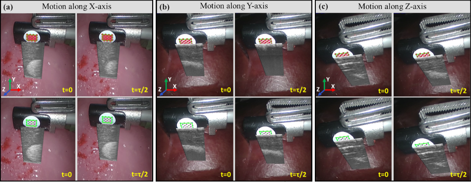 Figure 3 for Motion-Compensated Autonomous Scanning for Tumour Localisation using Intraoperative Ultrasound