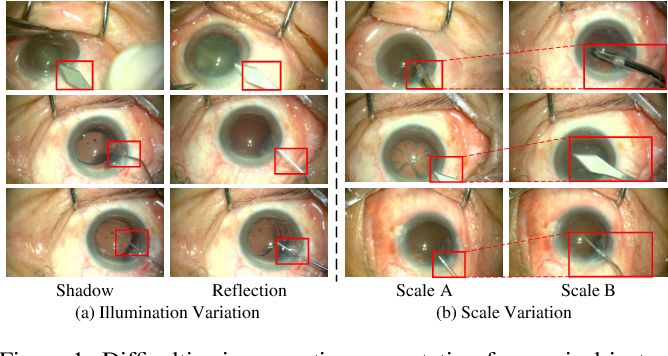 Figure 1 for BARNet: Bilinear Attention Network with Adaptive Receptive Field for Surgical Instrument Segmentation