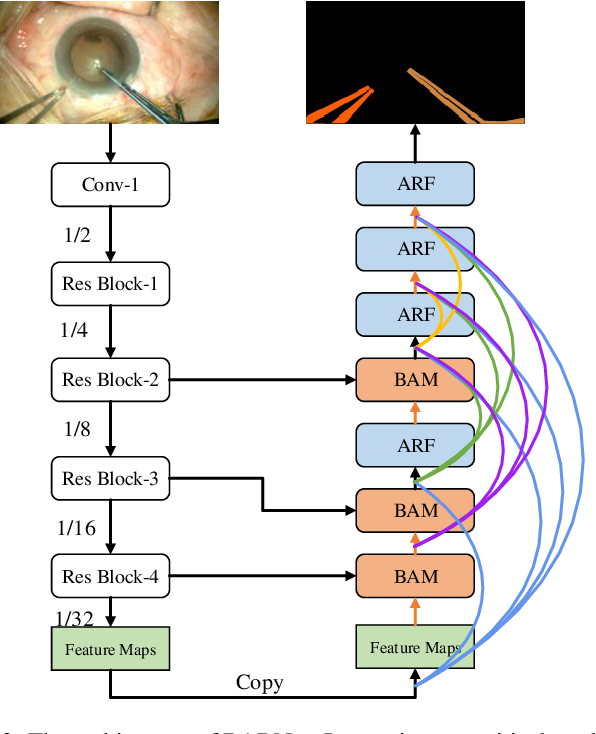 Figure 3 for BARNet: Bilinear Attention Network with Adaptive Receptive Field for Surgical Instrument Segmentation