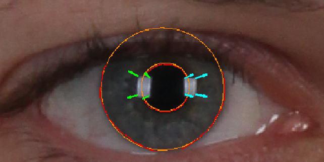 Figure 2 for Reflection Analysis for Face Morphing Attack Detection