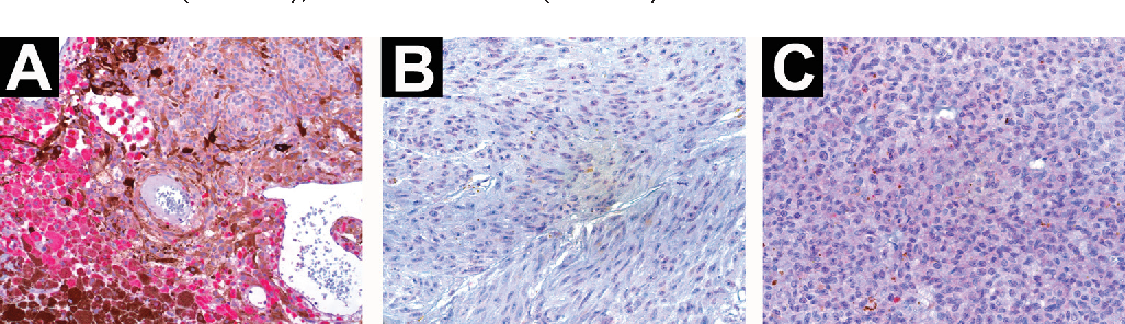 Figure 3. The immunostaining pattern of BRMS1 in primary human UM specimens. (a) UM specimen showing cytoplasmatic staining for