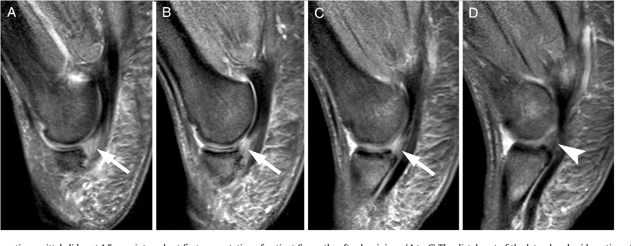 Nonoperative Treatment of a Lesser Toe Plantar Plate Tear with ...