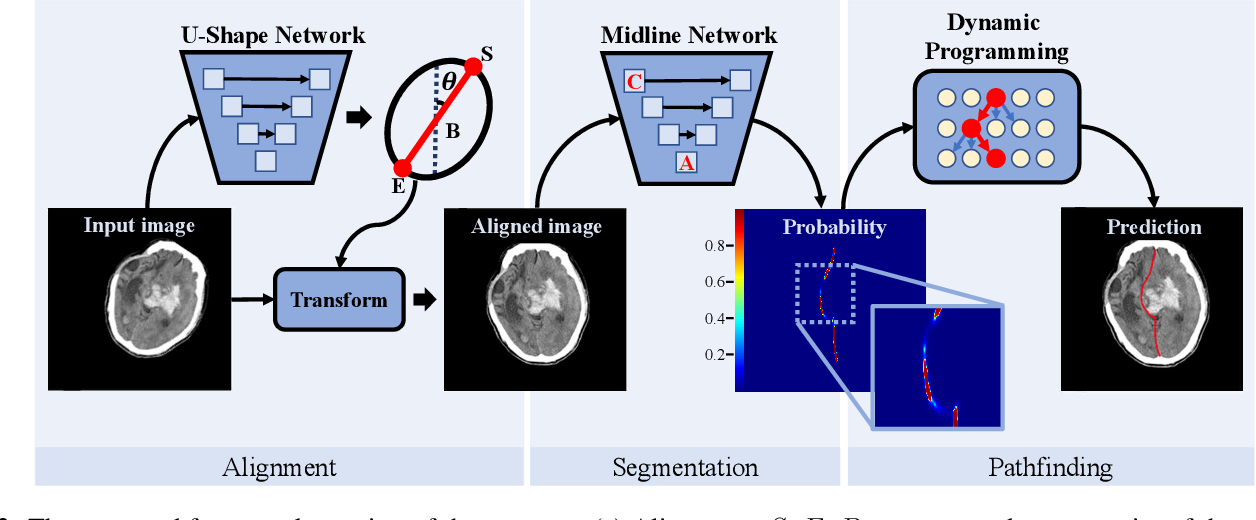Figure 3 for Segmentation-based Method combined with Dynamic Programming for Brain Midline Delineation