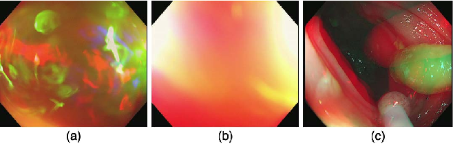 Figure 4 for Colorectal Polyp Detection in Real-world Scenario: Design and Experiment Study