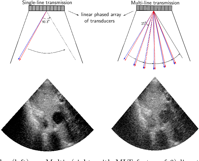 Figure 1 for High quality ultrasonic multi-line transmission through deep learning