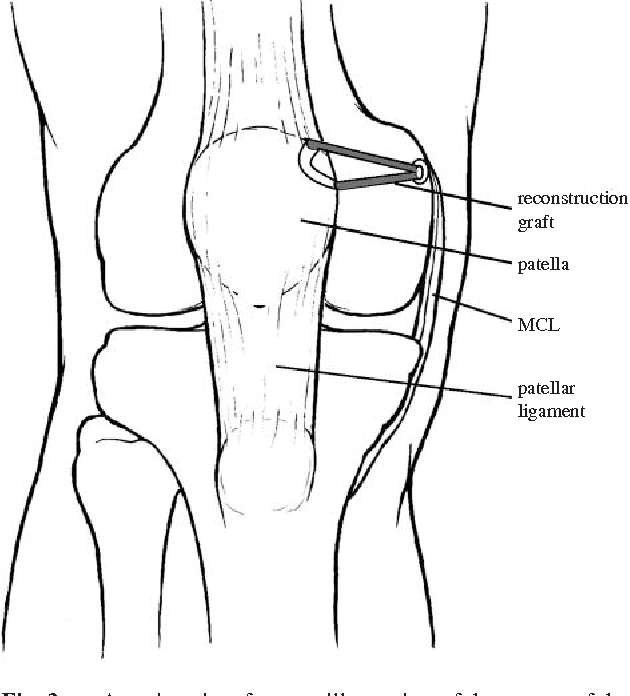 Reconstruction of the medial patellofemoral ligament for patellar ...