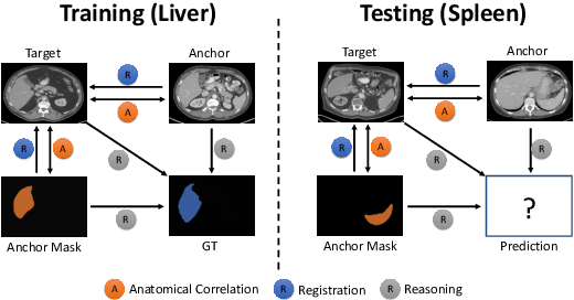 Figure 1 for Generalized Organ Segmentation by Imitating One-shot Reasoning using Anatomical Correlation