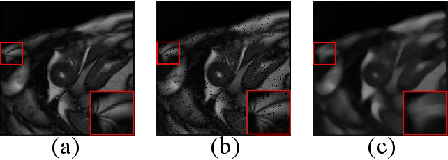 Figure 1 for SEGAN: Structure-Enhanced Generative Adversarial Network for Compressed Sensing MRI Reconstruction