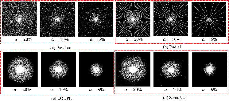 Figure 4 for One Network to Solve Them All: A Sequential Multi-Task Joint Learning Network Framework for MR Imaging Pipeline