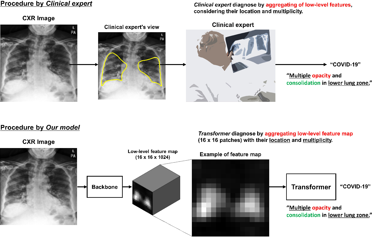 Figure 1 for Vision Transformer using Low-level Chest X-ray Feature Corpus for COVID-19 Diagnosis and Severity Quantification