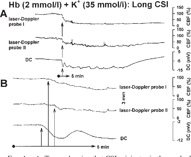 FIG. 1. A: Traces showing that CSI originates in the cerebral cortex during superfusion of ACSF containing Hb (2 mmol/L) and K+ (35 mmol/L). The onset of CSI is indicated by the arrows. The CSI event is characterized by a sharp negative shift in DC and a steep decrease in CBF. In this case, the negative shift in the DC and the decrease in CBF lasted for more than 30 minutes. Note the waveform of DC negativity, which represents multiple CSD cycles. B: Traces showing a higher temporal resolution of the onset of CSI. Note that the negative shift in DC precedes the decrease in CBF measured by LD Probes I and II. (The DC electrode was positioned close to Probe I.) Compare also the similarity between the initial segment of the negative DC shift with that of a CSD during superfusion of ACSF with K+ (80 mmol/L) and without Hb (Fig. 8B).