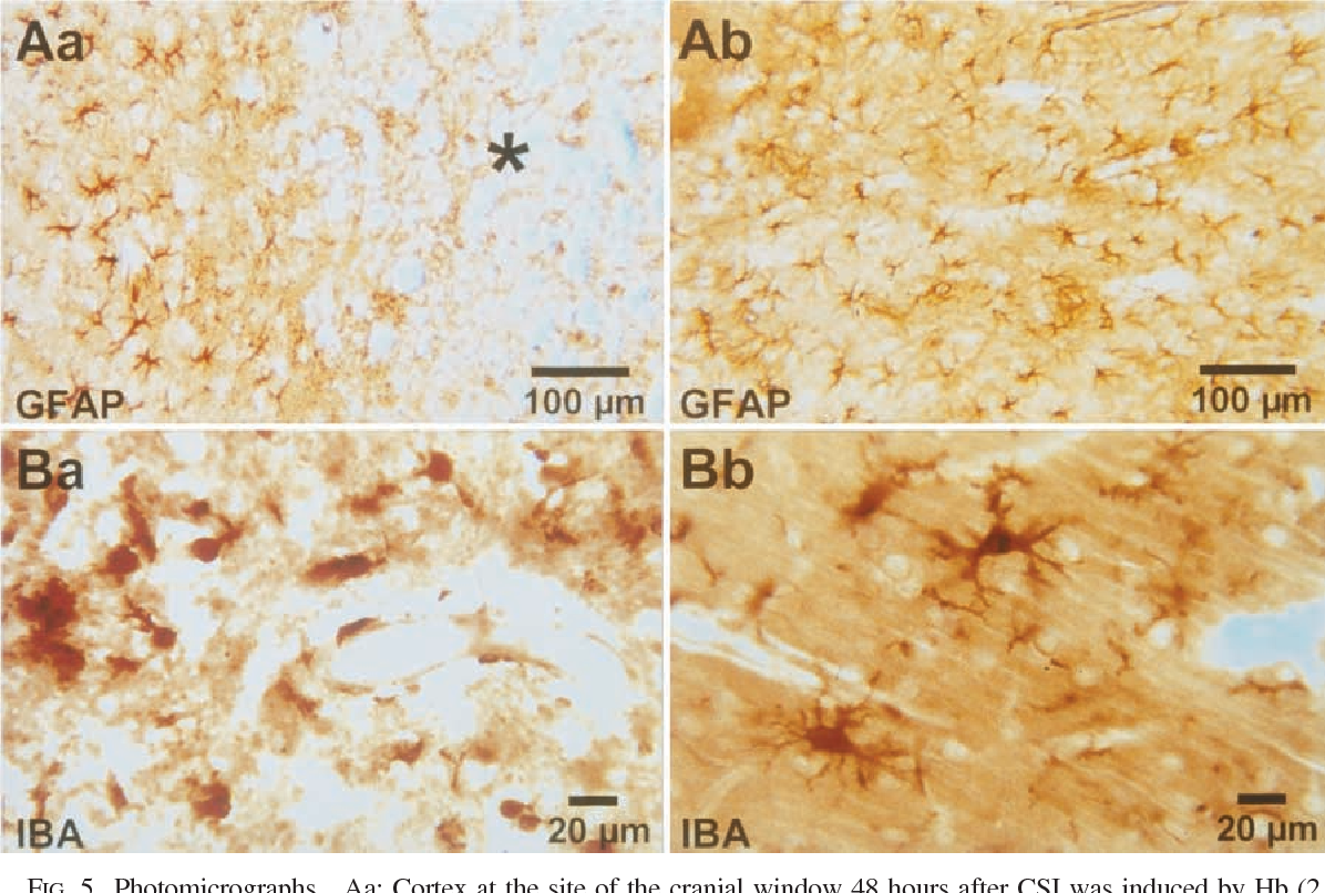 FIG. 5. Photomicrographs Aa: Cortex at the site of the cranial window 48 hours after CSI was induced by Hb (2 mmol/L) and K+ (35 mmol/L) in ACSF. The GFAP staining reveals loss of astrocytes confined sharply to the infarcted zone (asterisk) surrounded by activated astrocytes. Ab: Activated astrocytes in the cortex at the window in a control animal (K+ [80 mmol/L] in ACSF without Hb) 48 hours after the experiment. GFAP staining. Ba: Larger numbers of phagocytic microglia and other macrophages are observed in the infarcted area 48 hours after CSI (Hb [2 mmol/L] and K+ [35 mmol/L] in ACSF). Iba1 staining. Bb: Activated microglial cells residing in cortex at the site of the cranial window in a control animal (K+ [80 mmol/L] in ACSF without Hb) 48 hours after the experiment. Iba1 staining.