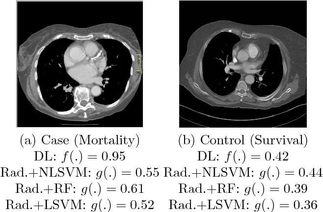 Figure 3 for Automated 5-year Mortality Prediction using Deep Learning and Radiomics Features from Chest Computed Tomography