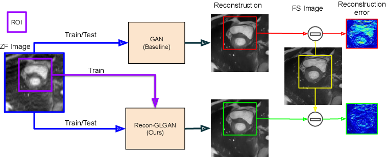 Figure 1 for Recon-GLGAN: A Global-Local context based Generative Adversarial Network for MRI Reconstruction