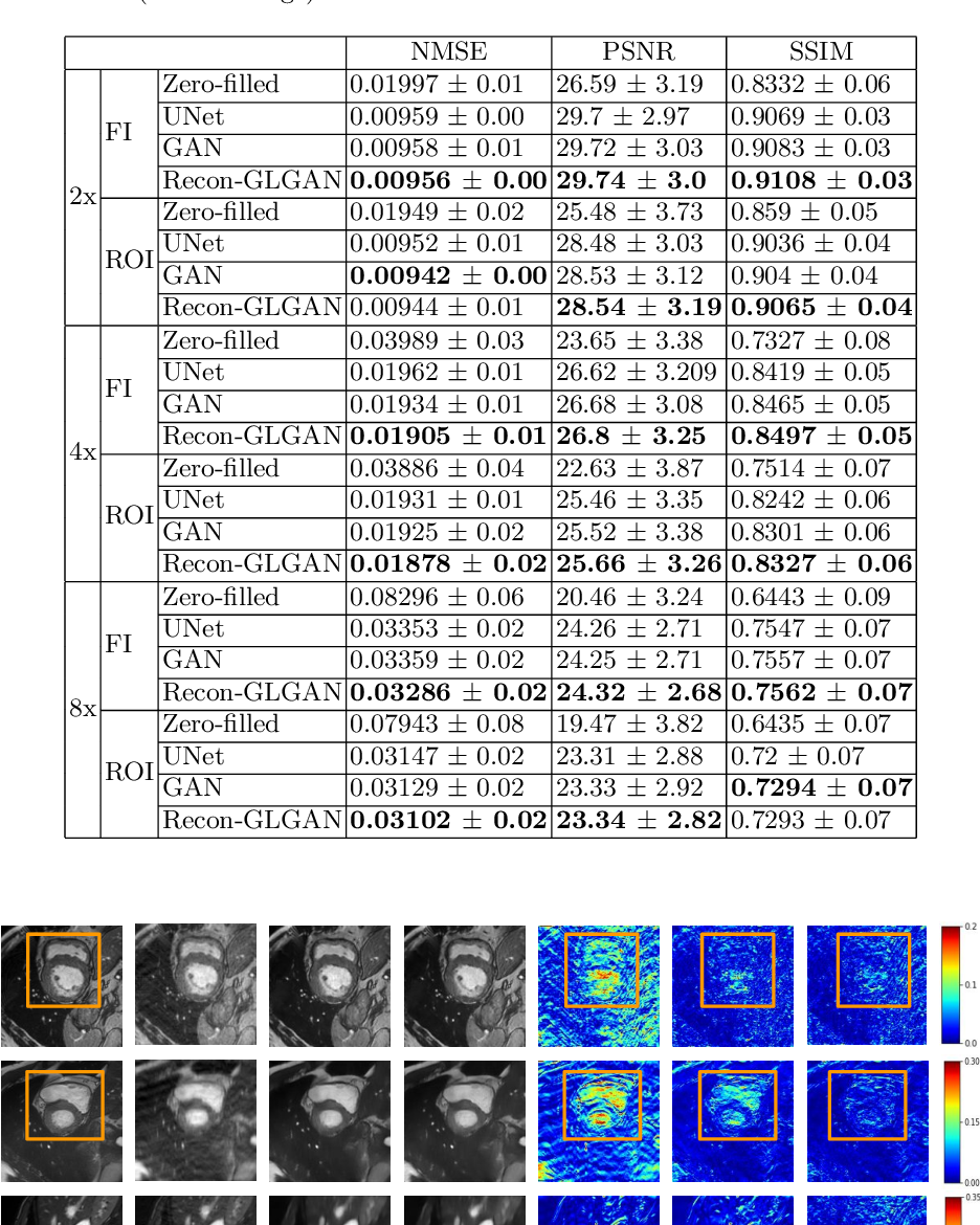 Figure 2 for Recon-GLGAN: A Global-Local context based Generative Adversarial Network for MRI Reconstruction