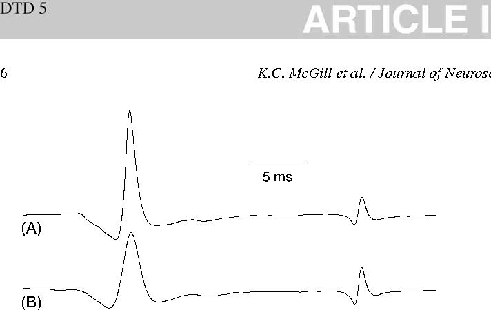 Figure 4 from EMGLAB: an interactive EMG decomposition program ...