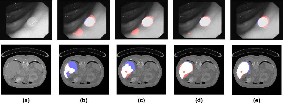 Figure 1 for Spatially Dependent U-Nets: Highly Accurate Architectures for Medical Imaging Segmentation