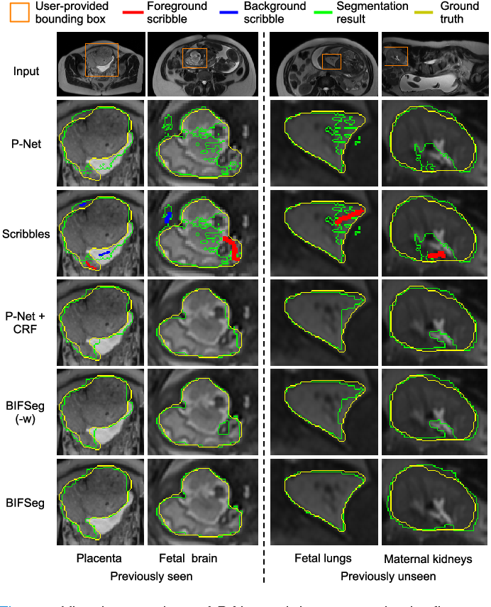 Fig. 7. Visual comparison of P-Net and three supervised refinement methods for fetal MRI segmentation. The same initial segmentation and scribbles are used for P-Net + CRF, BIFSeg(-w) and BIFSeg.