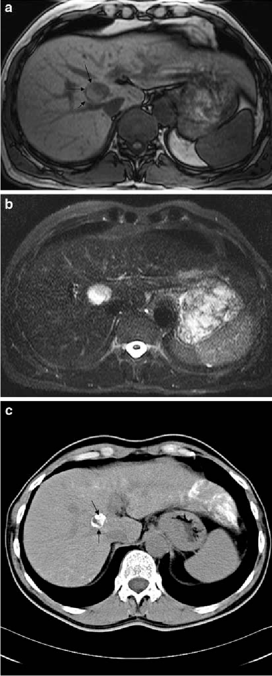 Fig. 2 A 60-year-old man with a liver metastasis of malignant melanoma undergoing three cycles of TACE (pre- and post-procedure) (partial response group). a Transverse T1-weighted (TR/TE/ FA = 198 ms/2 ms/70°) MR scan showing a lesion of 25 £ 20 mm in size in the right liver lobe pre-TACE. Note the hyperintense rim in the posterior part of the tumor (arrows). b Transverse T2-weighted (TR/TE/FA = 1,000 ms, 84 ms, 150°) MR scan demonstrates the metastases with an intratumoral rim of high signal intensity centrally in the liver pre-TACE. c Unenhanced transverse CT shows lipiodol retention (arrows) in the down-sized tumor post-chemoembolization in the 6-month follow-up after TACE