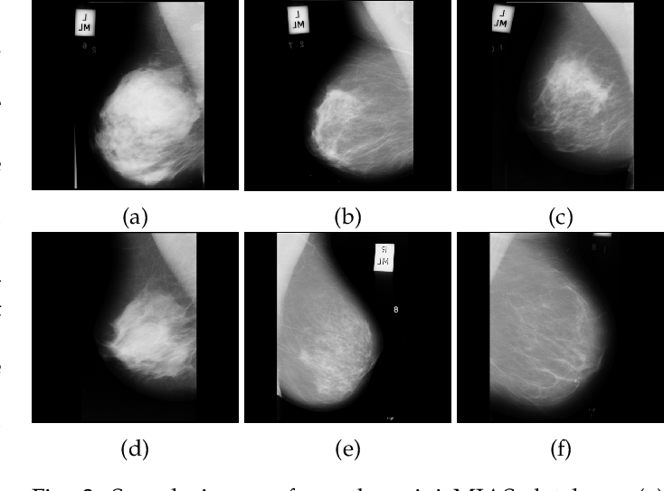 Figure 4 for Use of Transfer Learning and Wavelet Transform for Breast Cancer Detection