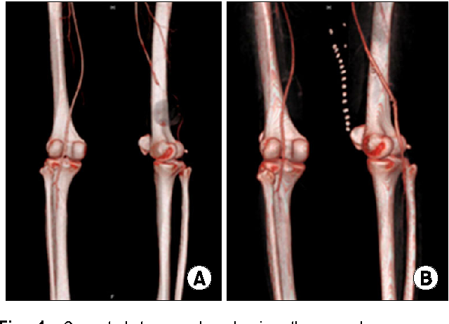 An Isolated True Aneurysm of the Superficial Femoral Artery in a ...